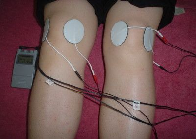 electroterapia1